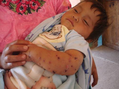 2010 : Un bébé, comme de nombreux autres, atteint d'une sévère maladie de la peau dans l'une des communautés près de la mine Marlin de Goldcorp. Des études scientifiques démontrent que ce genre de problème cutané pourrait être lié à la contamination de l'eau par des métaux lourds. CRÉDITS : Rights Action.